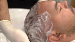 شست و شوی موها پس از کاشت