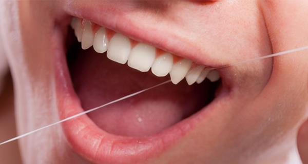 نخ دندان ارکید مدل کلاسیک
