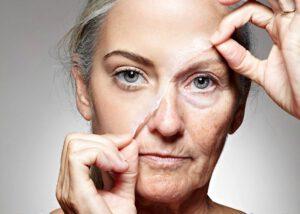 درمان چین و چروک پوست با کرم ضد چروک بی کام بایو