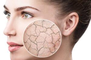 درمان خشکی پوست صورت