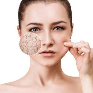 درمان خشک شدن پوست