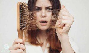 درمان ریزش موی سر
