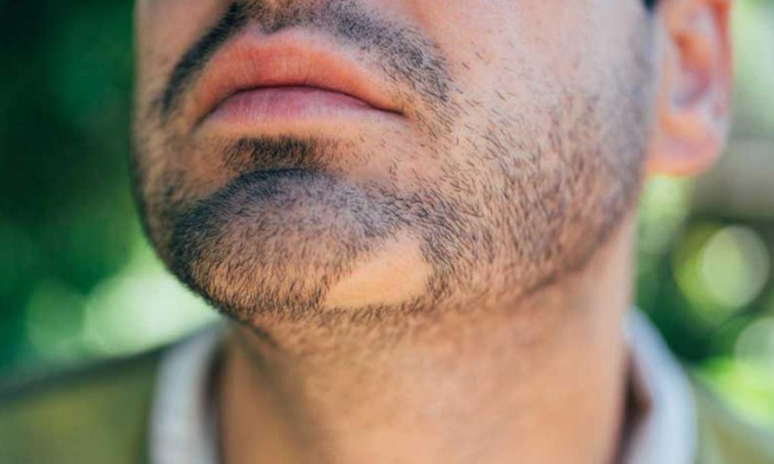 عوامل موثر در ریزش موی صورت آقایان